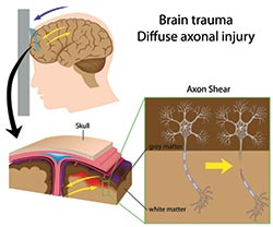 concussion diagram