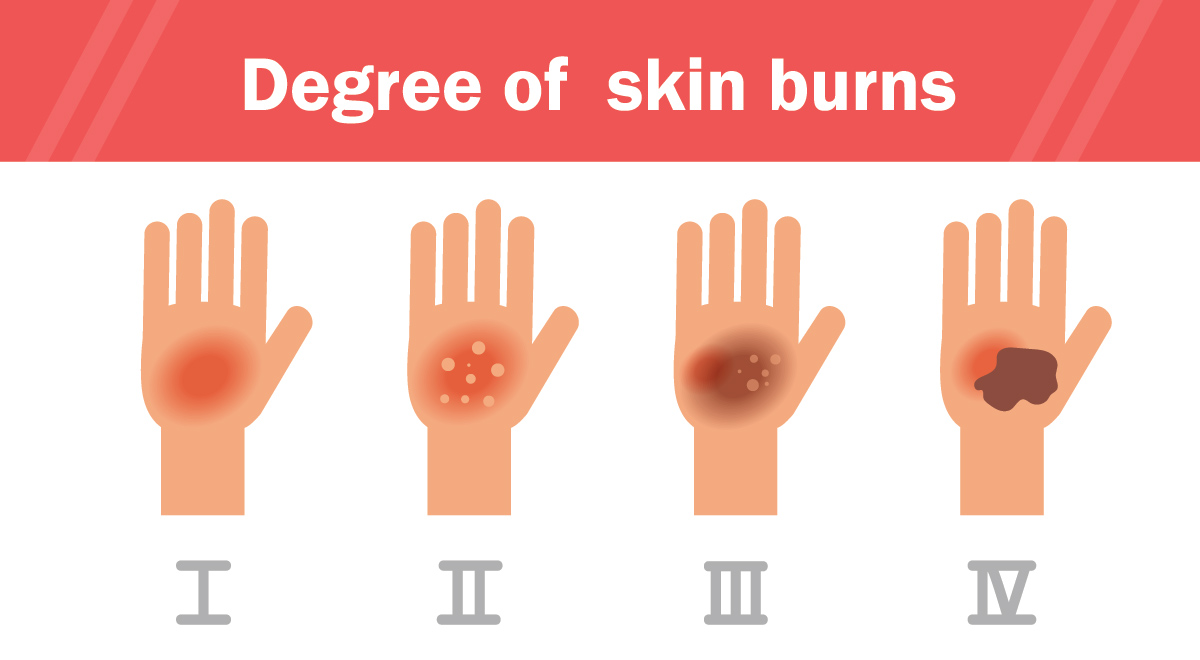 When to seek care for a burn | HCA Midwest Health | Turn4TheBetter
